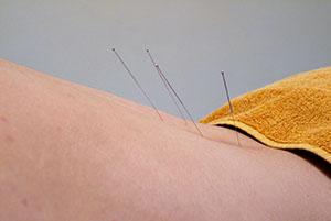 Praktijk Fiedler - Fysiotherapie - Acupunctuur - Stressreductie - Voeding en Leefstijl - Diensten-s